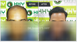 Hair Transplant In Mumbai - Get visible result by doing hair transplant in mumbai at HHY in affordable cost, 1000's of happy patients with best visible hair result.