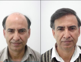 Hair and Hair best Hair transplant In Pakistan by the automated FUE method. The goal of hair transplant is to density a bald area, to redraw the front line or the gulfs.