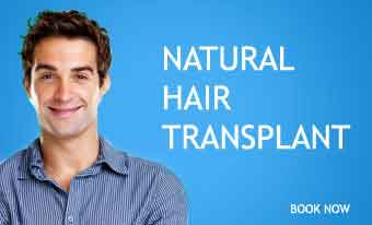Hair transplant - Facts, cost, results, everything about hair transplant